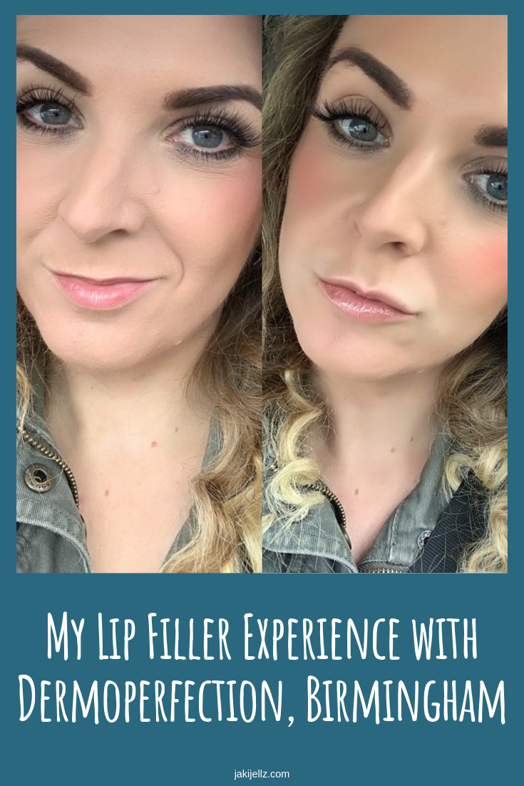 My Lip Filler Experience with Dermoperfection, Birmingham